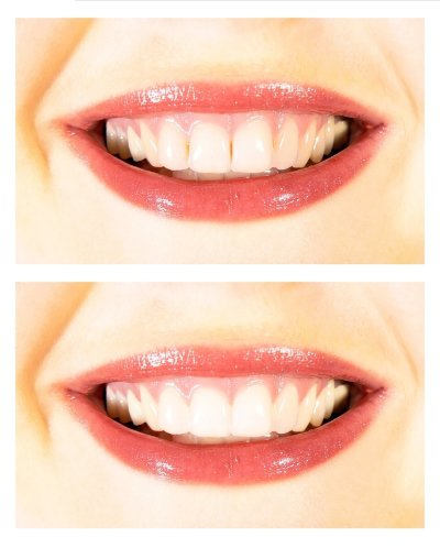 Whiter-Smile